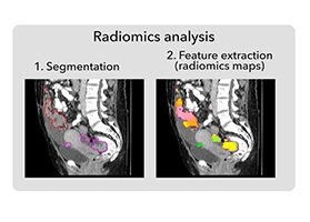 Integrative radiogenomics for virtual biopsy and treatment monitoring in ovarian cancer.
